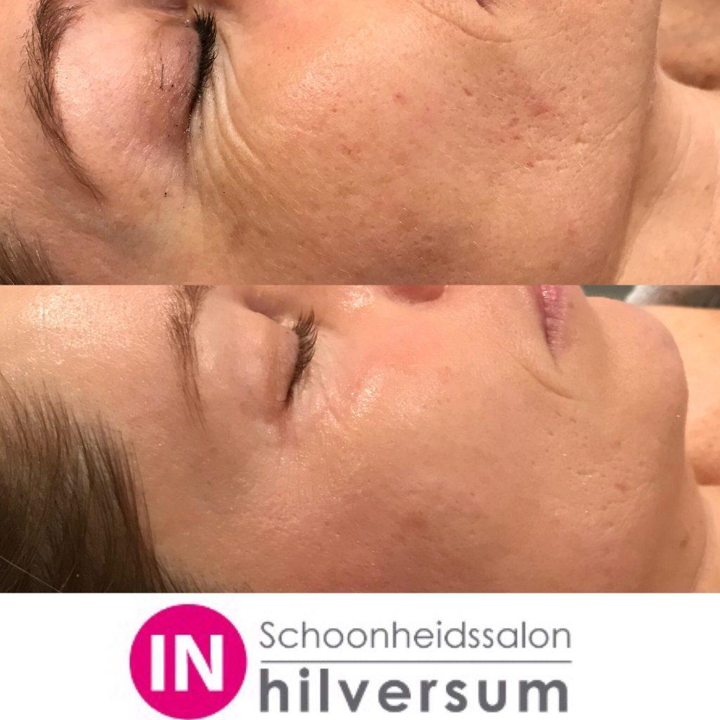 Schoonheidssalon IN Hilversum - bindweefsel massage